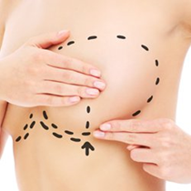 Breast Revision Surgery*
